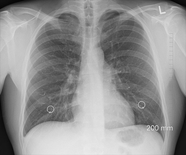 Tuberculosis-Cause,Symptoms,Treatment||Detailed Information